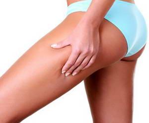 Упражнения для похудения и подтяжки ног, ляшек и бедер. Пошаговая инструкция для мужчин и женщин