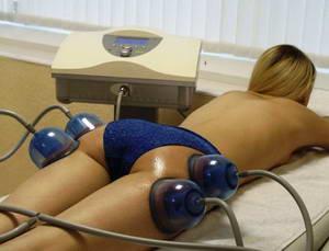 Что из себя представляет вакуумный массаж для похудения