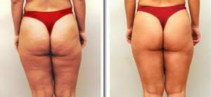 тренажерка для похудения программа тренировок девушкам
