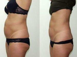 Каковы отзывы на лимфодренажный массаж, фото до и после