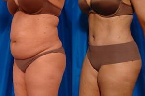 Как выглядят фото до и после липосакции живота