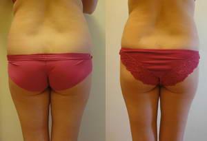 Мария похудела на 2 килограмма после прохождения 10 процедур LPG-массажа