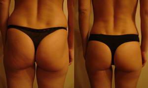 Лиза похудела на 3 килограмма после прохождения 5 процедур LPG-массажа