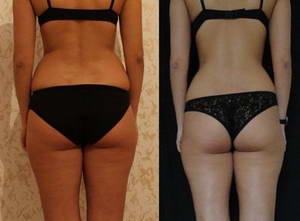 Екатерина похудела на 7 килограммов после 20 процедур LPG-массажа