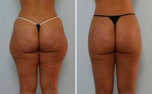 Анжелика похудела на 3 килограмма после 15 сеансов LPG-массажа