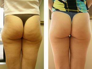 кавитация фото до и после