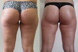 Валентина похудела на 4 килограмма после 10 сеансов кавитации