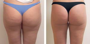 Наталья похудела на 2,5 килограмма за 10 сеансов прессотерапии