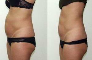 Катерина похудела на 6 килограммов после 10 сеансов прессотерапии